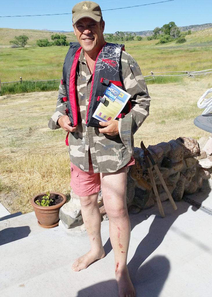Reid-swollen-leg